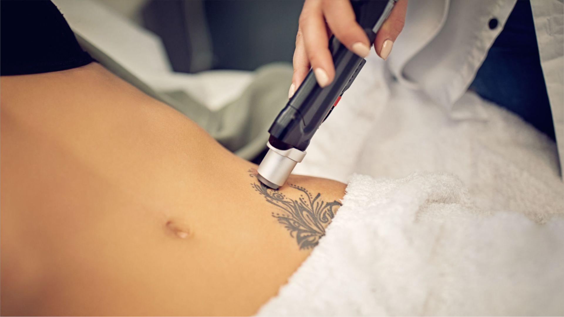 Técnica láser para borrar tus tatuajes y los riesgos que conlleva para tu salud ocular.