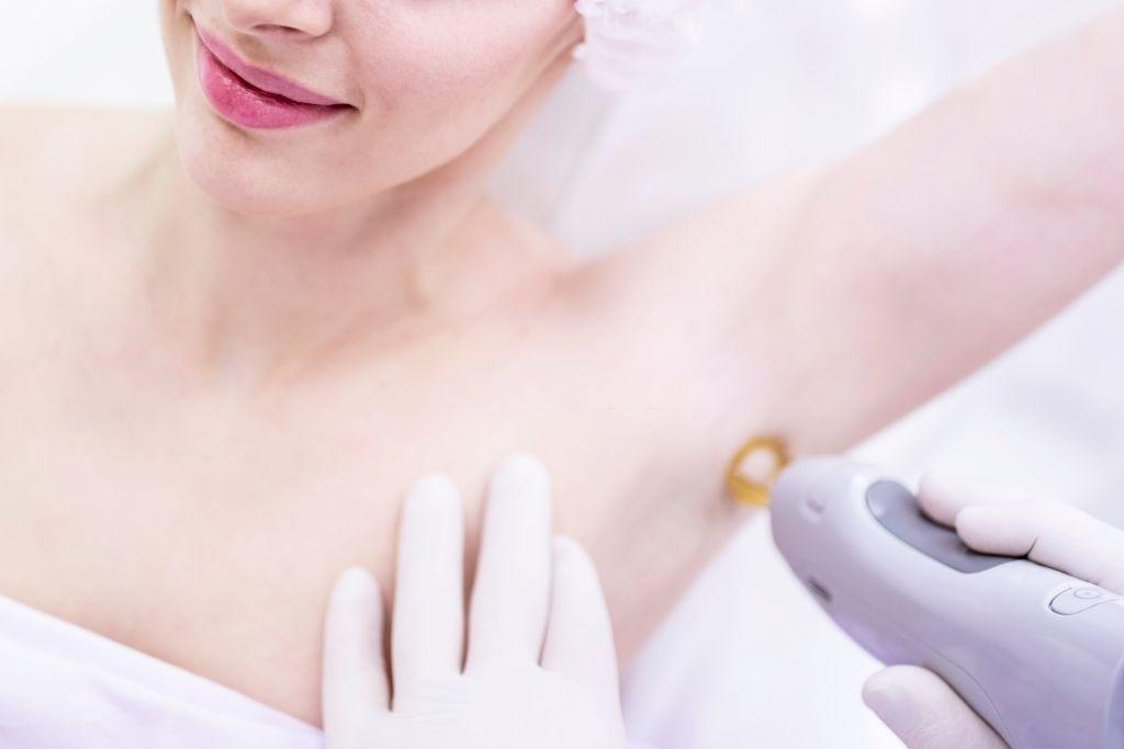 Una depilazione laser più sicura ed efficace è possibile